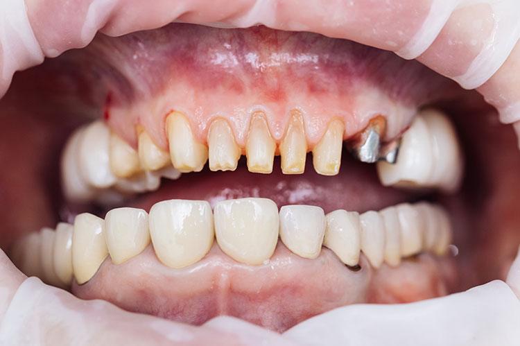 teeth drilled down before veneers are placed